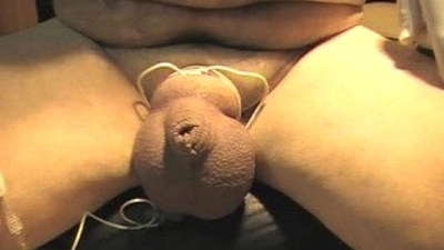 scrotal inflation